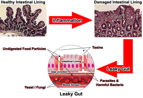 leaky gut process