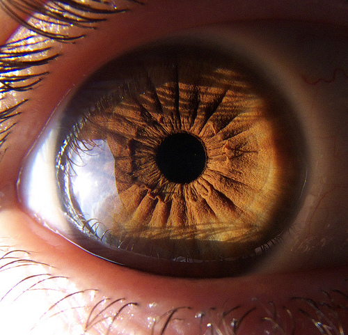 Eye Colour Variations In Iridology